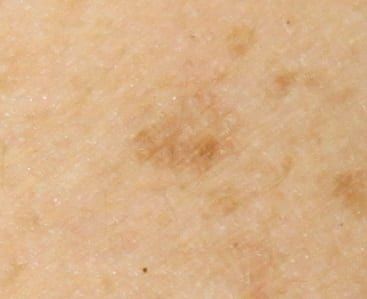 age spots arm left after two tx microneedling - DaVinci