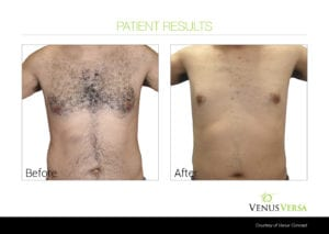 Abdomen and chest hair removal