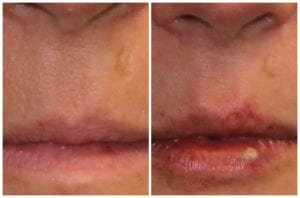 A woman that had a dermal filler procedure near Peoria, IL