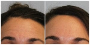 Before and after our botox treatment in Peoria, IL