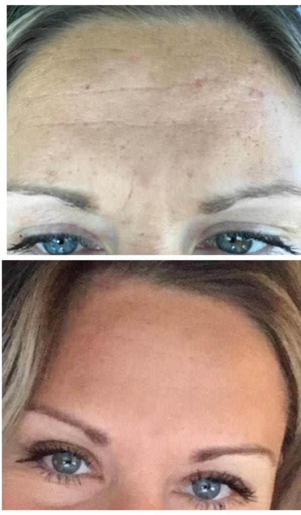 Botox Dr AJ Cummings forehead and 11 lines wrinkles treatment DaVinci Med Spa